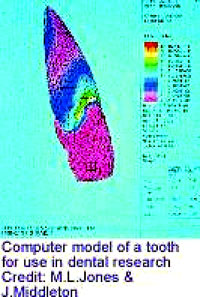 Tooth model [ 37.92 Kb ]